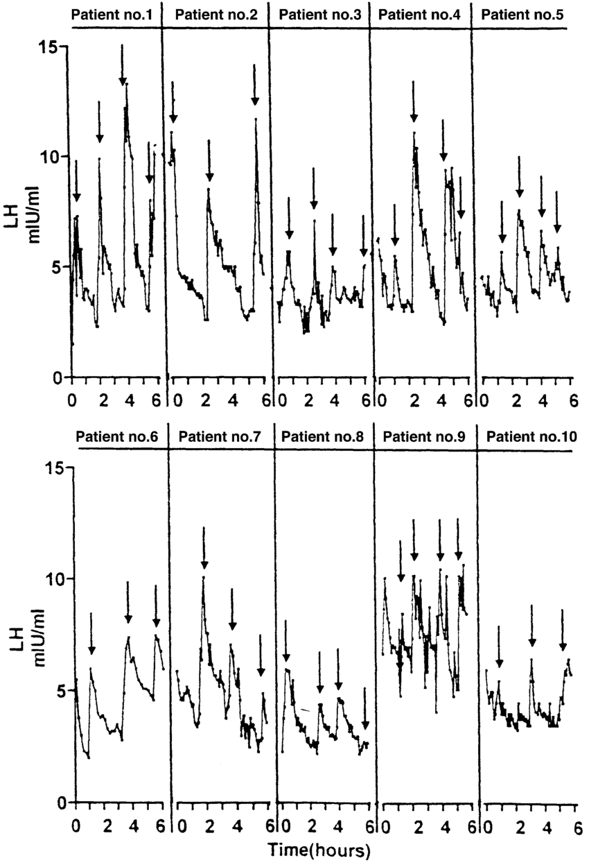 Luteinizing-hormone-LH-pulsatility-in-10-men-with-proven-fertility-The-LH-profile-was.png