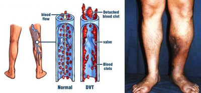 MVC-Miami-FL-March-is-DVT-Awareness-Month-Best-Vein-Doctor.png