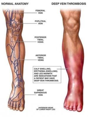 deep-vein-thrombosis.jpg