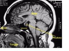 pituitarylabelled2.jpg