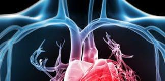 testosterone heart cvd
