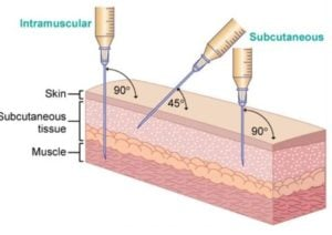 subcutaneous testosterone